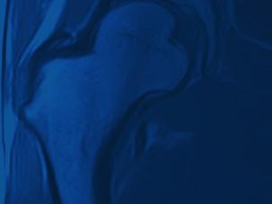 Offene Magnet-Resonanz-Tomographie