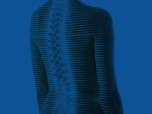 3D/4D Wirbelsäulenanalyse ohne Strahlenbelastung